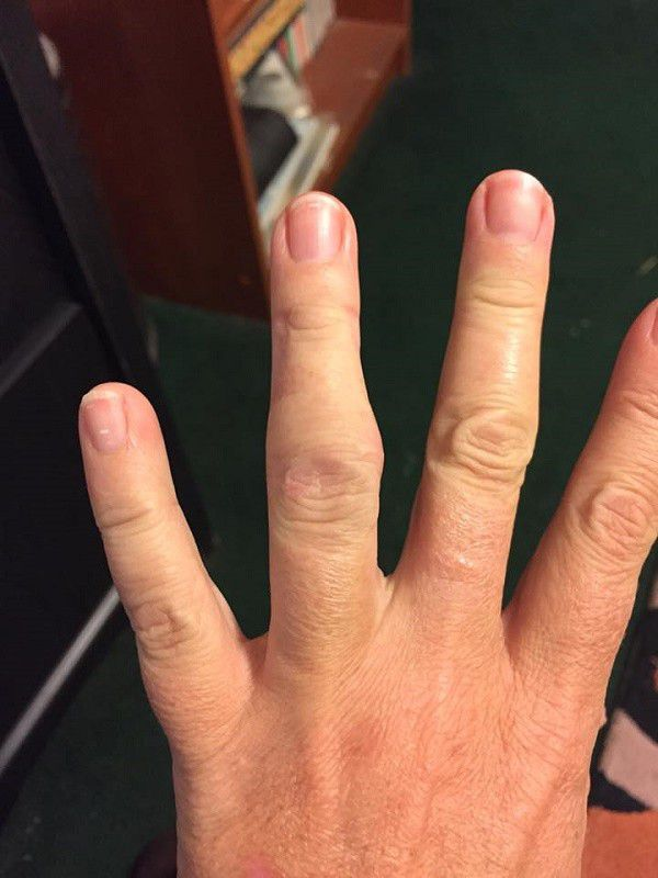 My busted finger from saving a dog while on a hike.