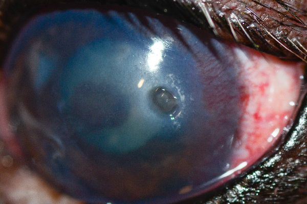 """""""This is a typical deep ulcer that you can tell is deep because there is a divot,"""" Dr. Alario says. """"There are blood vessels growing towards it on the cornea to help it heal."""""""