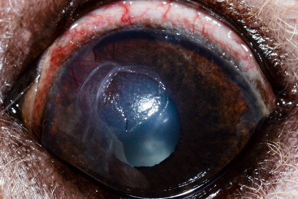 """""""This is an example of an indolent ulcer,"""" Dr. Alario says. """"These are the ulcers that affect older dogs (mostly boxers). You can see there is a rip in the surface of the cornea (epithelium) but no divot. This is the type of ulcer that needs to be debrided (ideally by an ophthalmologist, though so vets can do this)."""""""